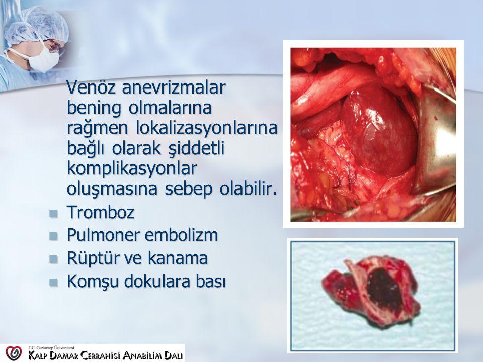 Venöz anevrizmalar bening olmalarına rağmen lokalizasyonlarına bağlı olarak şiddetli komplikasyonlar oluşmasına sebep olabilir.