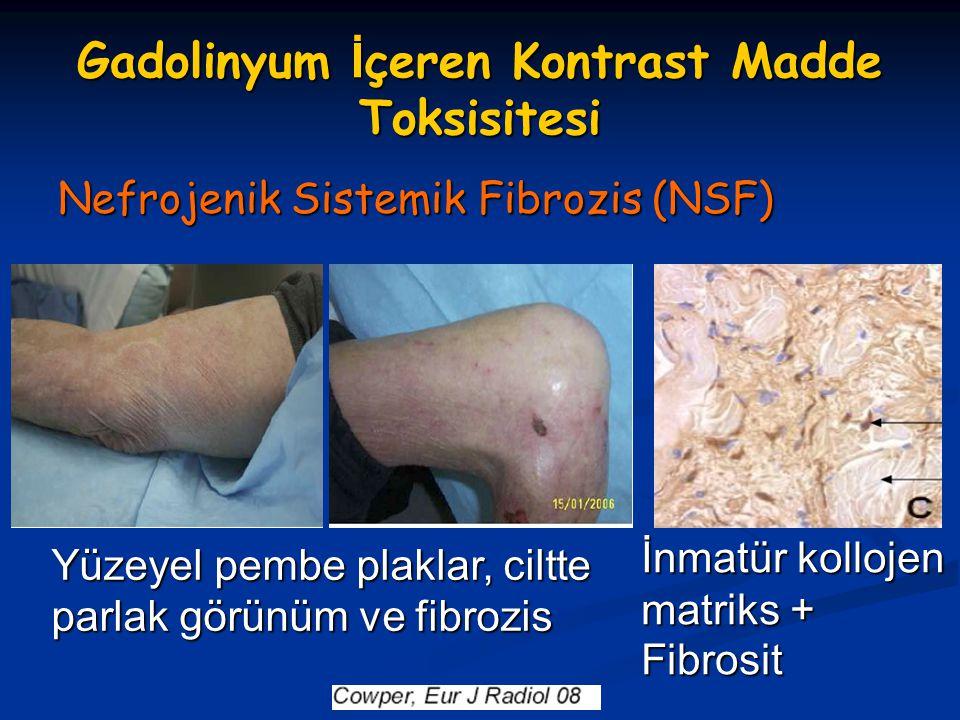 Gadolinyum İçeren Kontrast Madde Toksisitesi