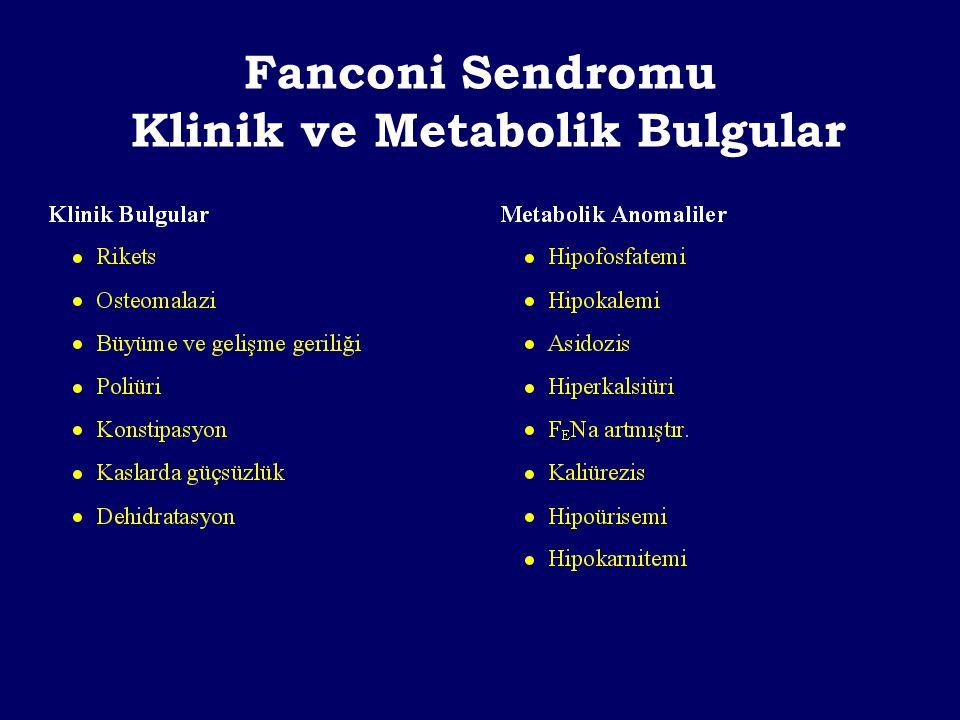 Fanconi Sendromu Klinik ve Metabolik Bulgular