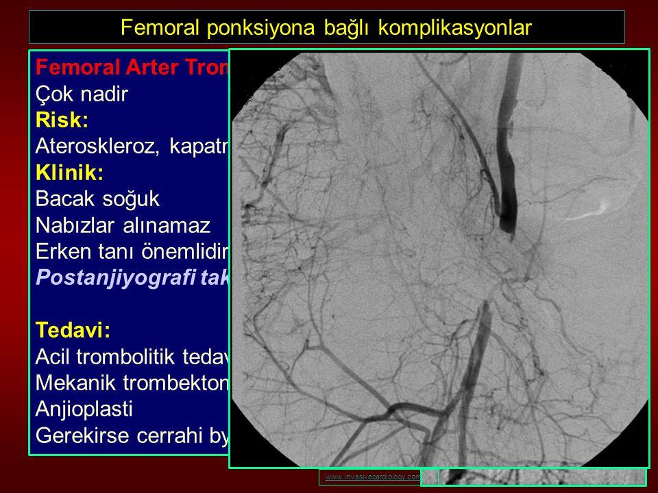 Femoral ponksiyona bağlı komplikasyonlar
