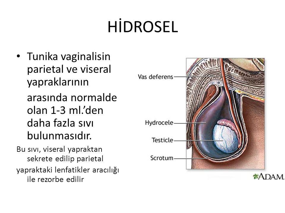 HİDROSEL Tunika vaginalisin parietal ve viseral yapraklarının