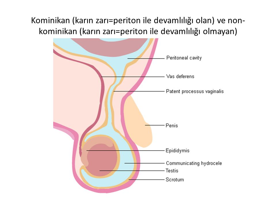 Kominikan (karın zarı=periton ile devamlılığı olan) ve non-kominikan (karın zarı=periton ile devamlılığı olmayan)