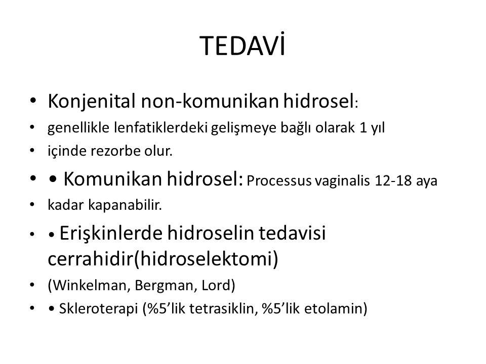 TEDAVİ Konjenital non-komunikan hidrosel: