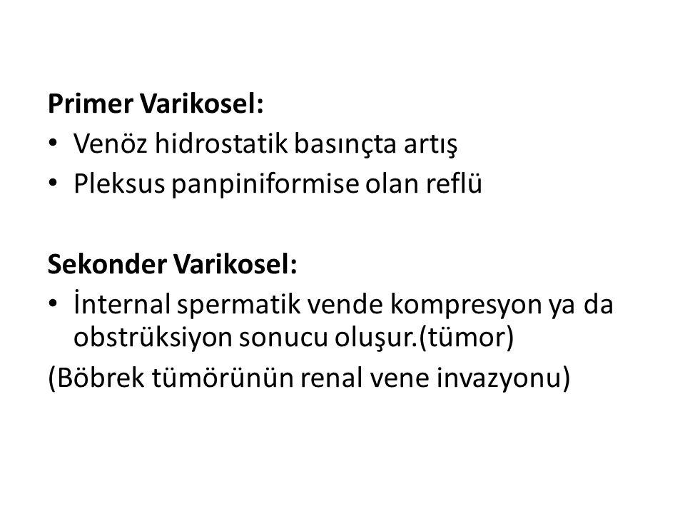 Primer Varikosel: Venöz hidrostatik basınçta artış. Pleksus panpiniformise olan reflü. Sekonder Varikosel: