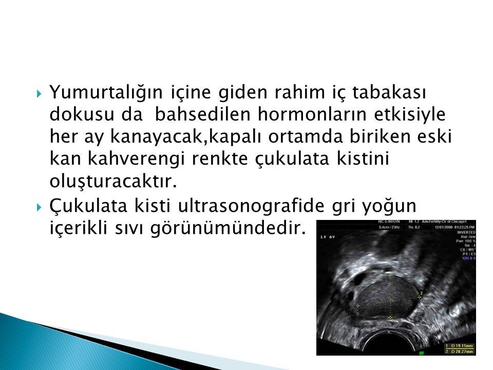 Yumurtalığın içine giden rahim iç tabakası dokusu da bahsedilen hormonların etkisiyle her ay kanayacak,kapalı ortamda biriken eski kan kahverengi renkte çukulata kistini oluşturacaktır.