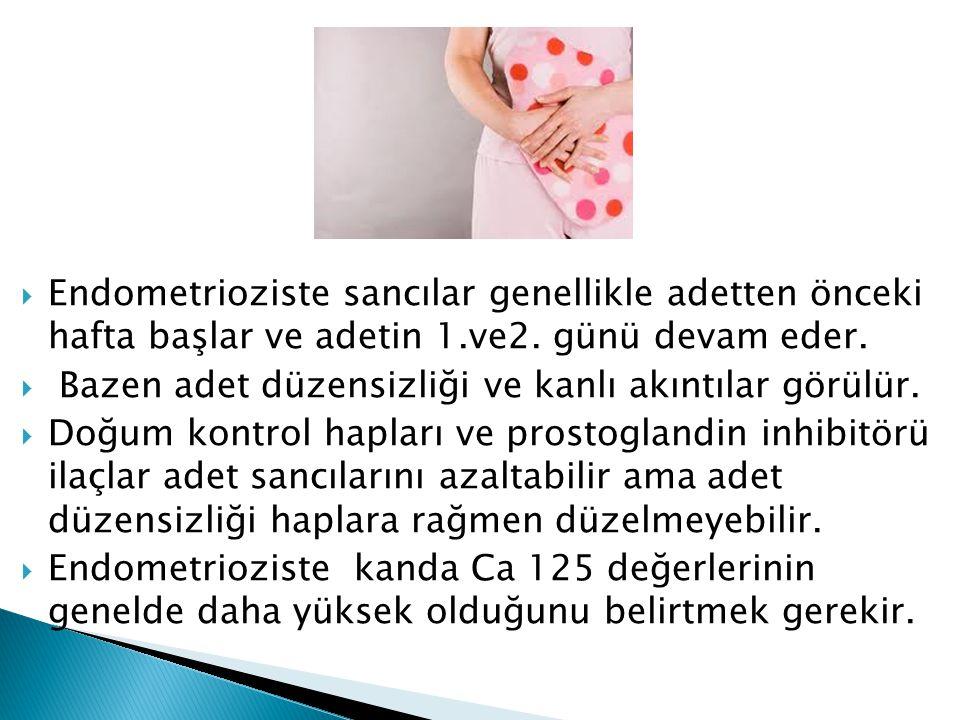 Endometrioziste sancılar genellikle adetten önceki hafta başlar ve adetin 1.ve2. günü devam eder.