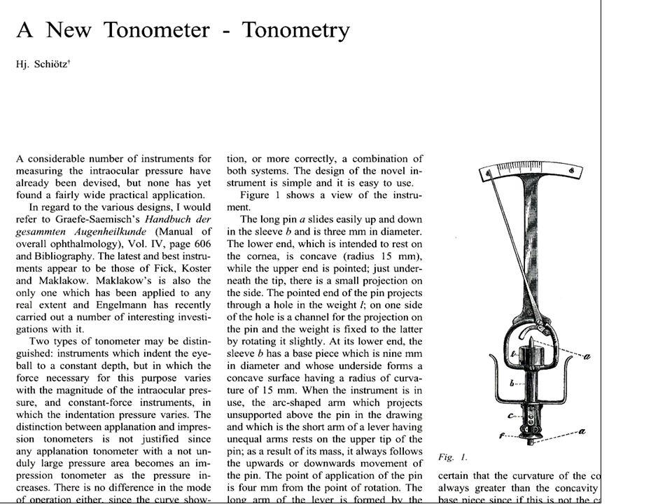 Korneayı çökertmek için belirli ağırlıkların kullanıldığı indantasyon tonometresi prensibine dayanır.