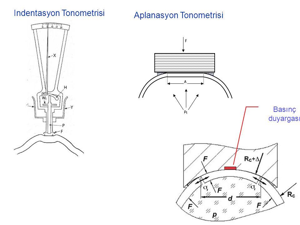 Indentasyon Tonometrisi Aplanasyon Tonometrisi