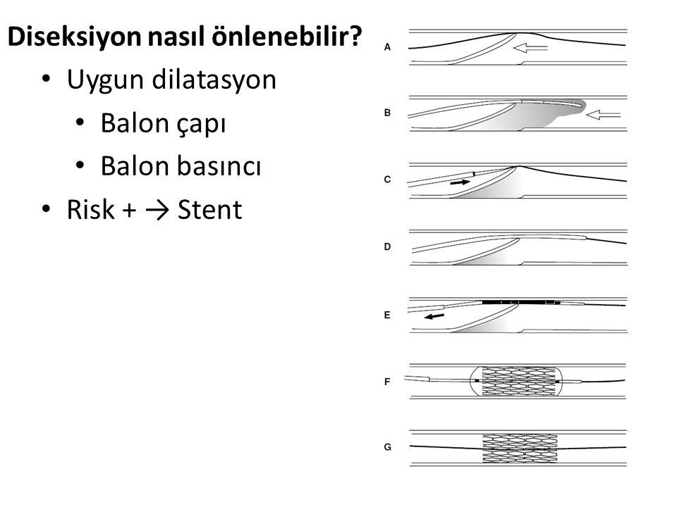 Diseksiyon nasıl önlenebilir Uygun dilatasyon Balon çapı