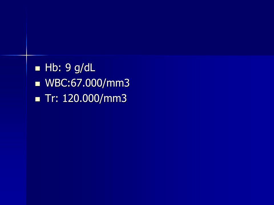 Hb: 9 g/dL WBC:67.000/mm3 Tr: 120.000/mm3