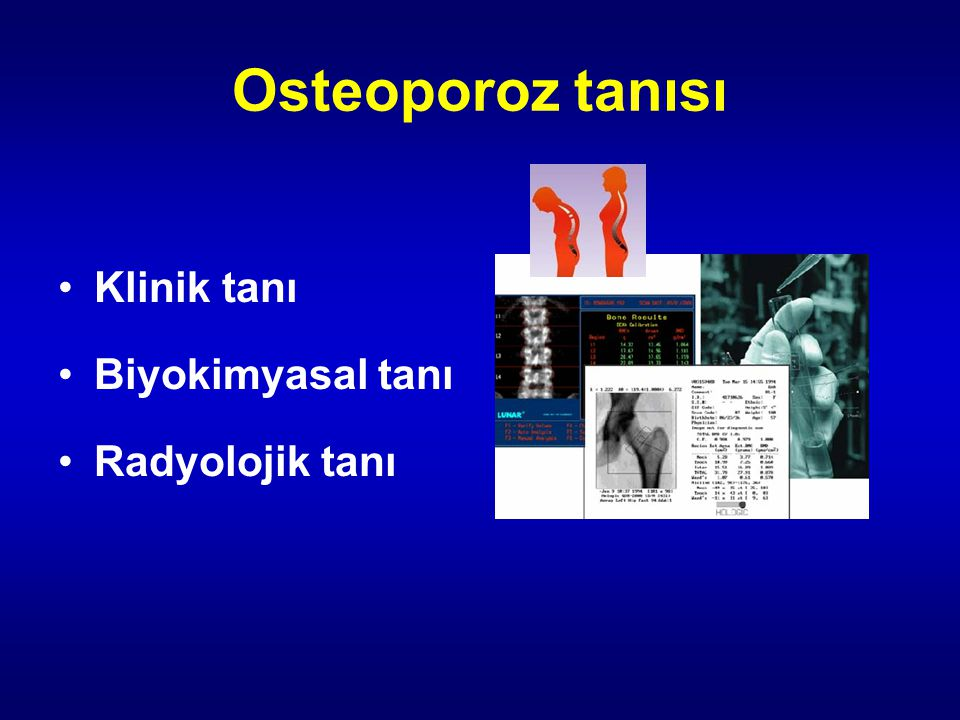 Osteoporoz tanısı Klinik tanı Biyokimyasal tanı Radyolojik tanı