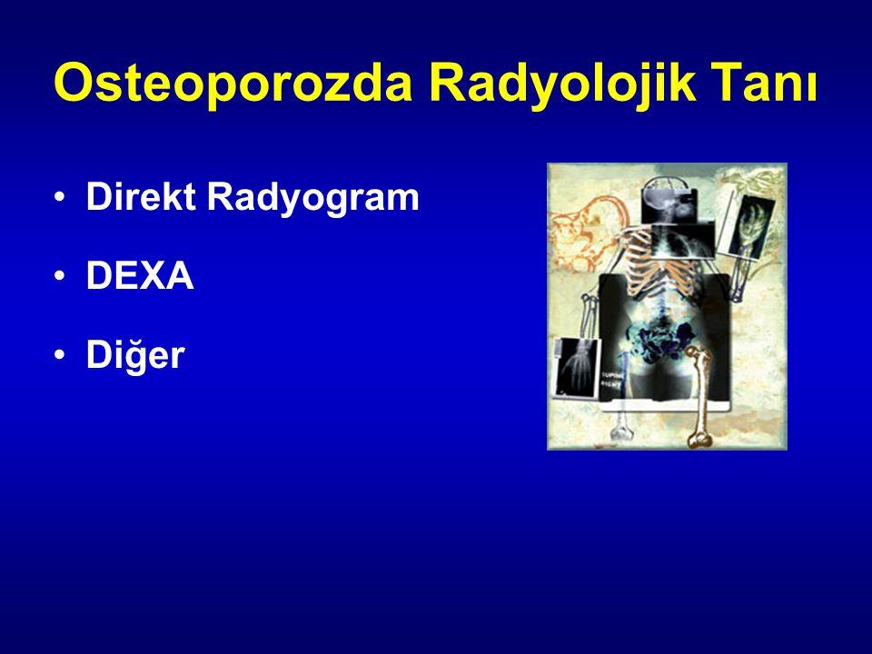 Osteoporozda Radyolojik Tanı