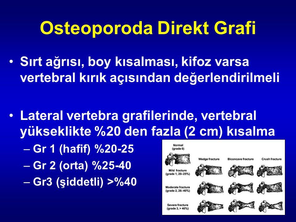 Osteoporoda Direkt Grafi