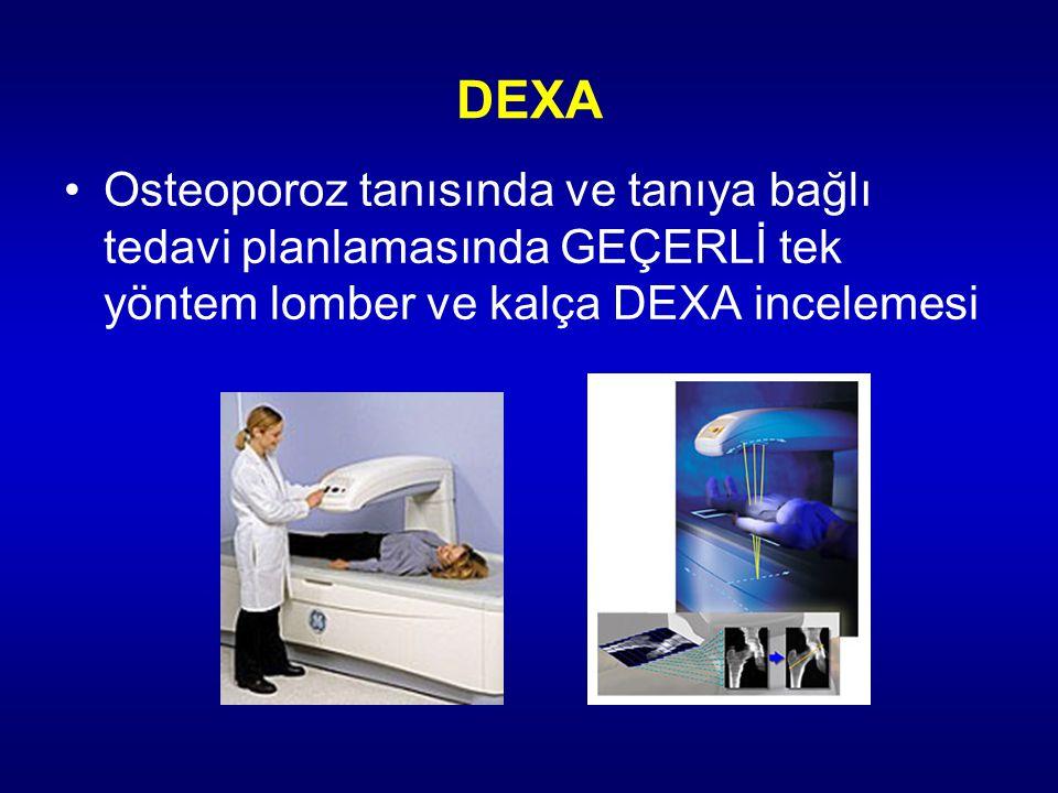 DEXA Osteoporoz tanısında ve tanıya bağlı tedavi planlamasında GEÇERLİ tek yöntem lomber ve kalça DEXA incelemesi.