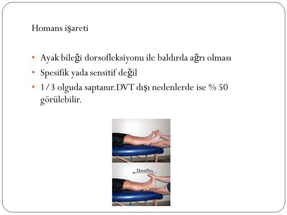 Homans işareti Ayak bileği dorsofleksiyonu ile baldırda ağrı olması. Spesifik yada sensitif değil.