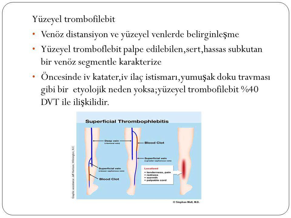Yüzeyel trombofilebit