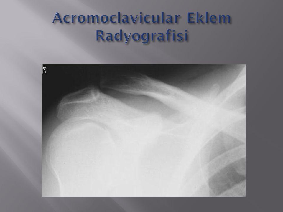 Acromoclavicular Eklem Radyografisi