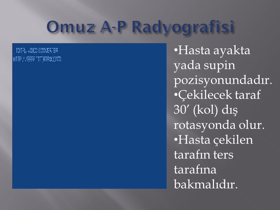 Omuz A-P Radyografisi Hasta ayakta yada supin pozisyonundadır.