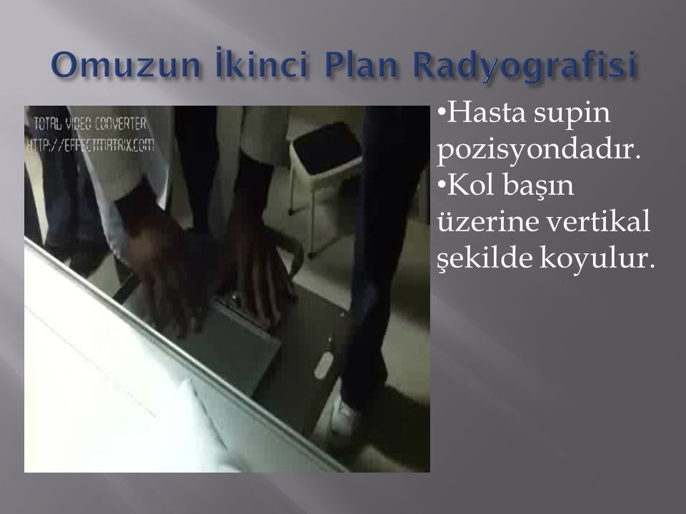 Omuzun İkinci Plan Radyografisi