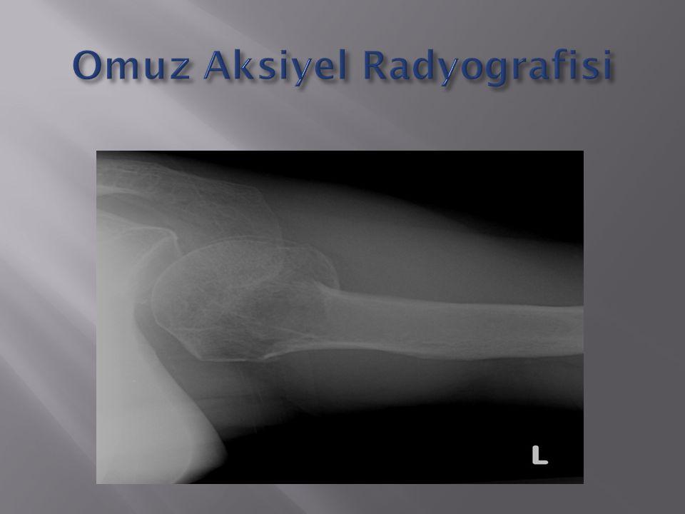 Omuz Aksiyel Radyografisi