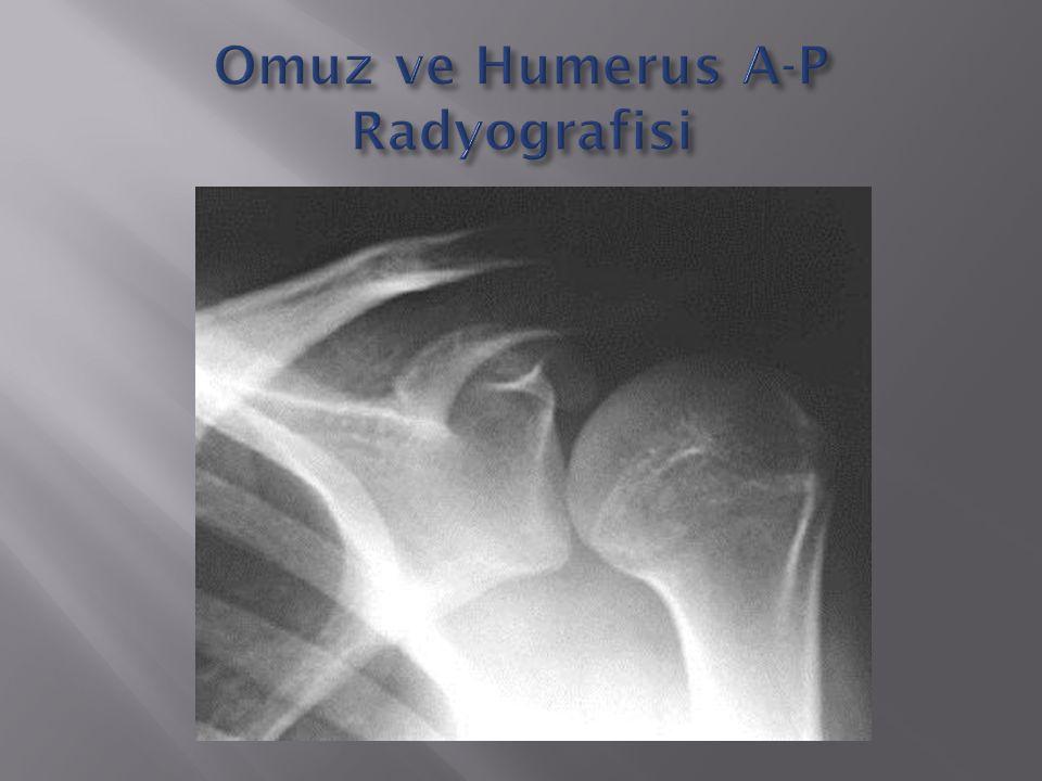 Omuz ve Humerus A-P Radyografisi