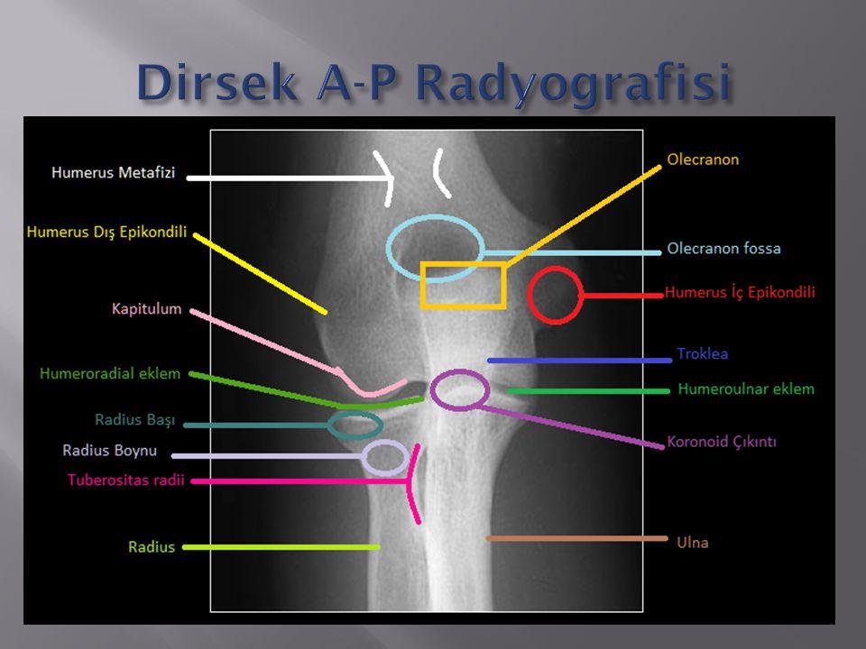 Dirsek A-P Radyografisi