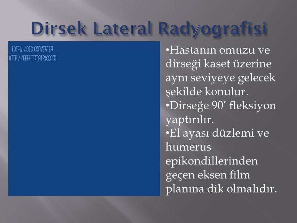 Dirsek Lateral Radyografisi