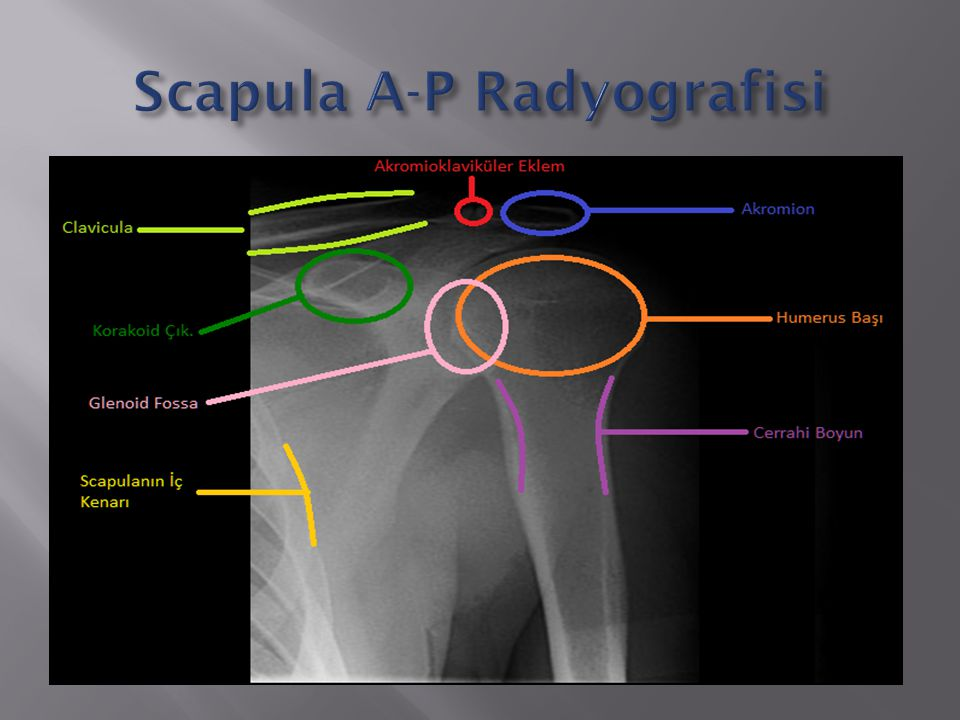 Scapula A-P Radyografisi