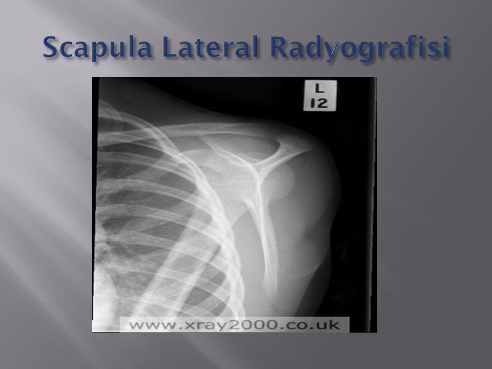 Scapula Lateral Radyografisi