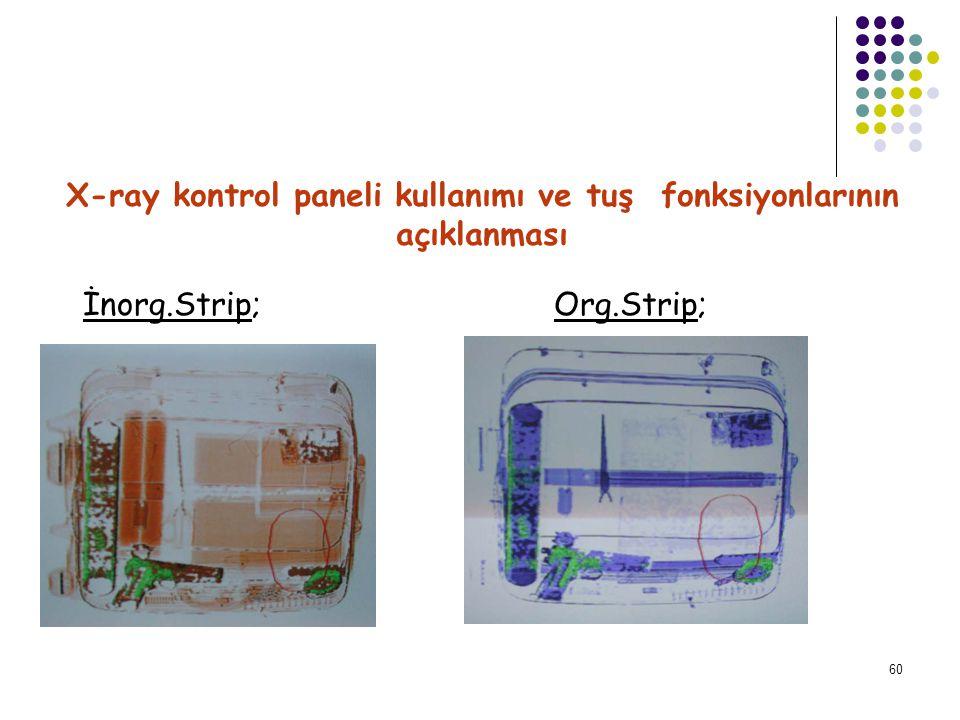 X-ray kontrol paneli kullanımı ve tuş fonksiyonlarının açıklanması