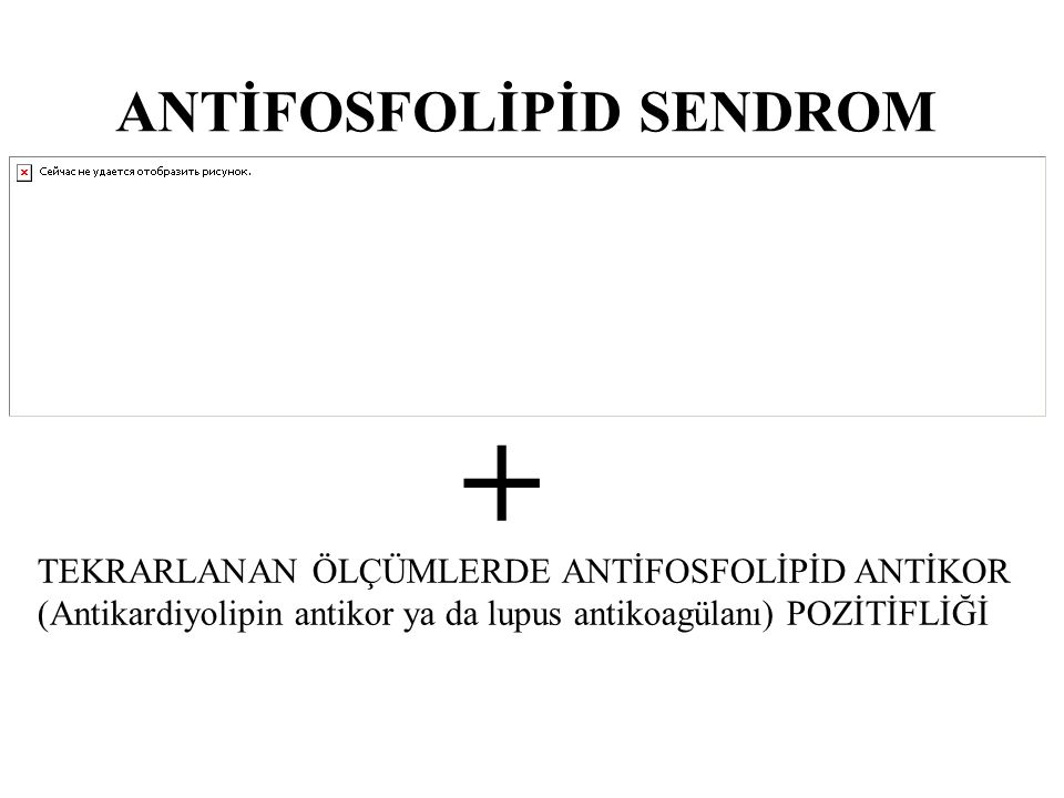+ ANTİFOSFOLİPİD SENDROM TEKRARLANAN ÖLÇÜMLERDE ANTİFOSFOLİPİD ANTİKOR