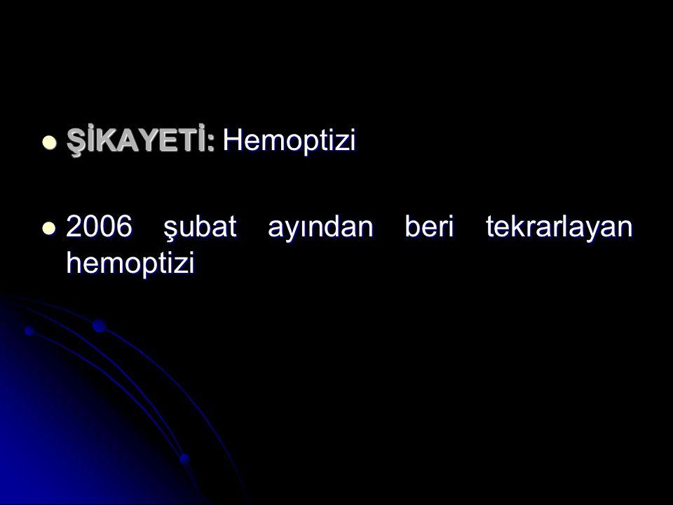 ŞİKAYETİ: Hemoptizi 2006 şubat ayından beri tekrarlayan hemoptizi