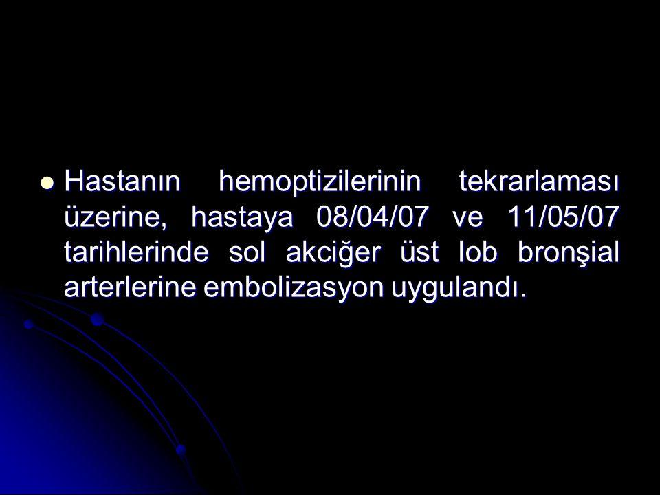 Hastanın hemoptizilerinin tekrarlaması üzerine, hastaya 08/04/07 ve 11/05/07 tarihlerinde sol akciğer üst lob bronşial arterlerine embolizasyon uygulandı.