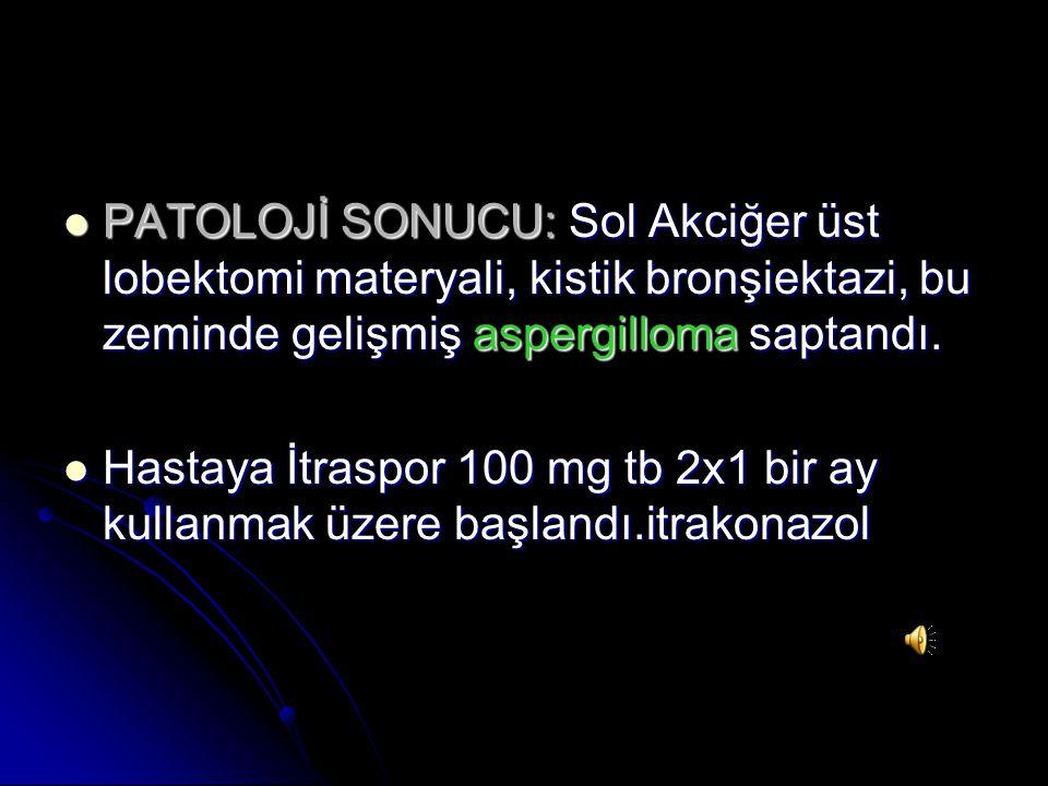 PATOLOJİ SONUCU: Sol Akciğer üst lobektomi materyali, kistik bronşiektazi, bu zeminde gelişmiş aspergilloma saptandı.