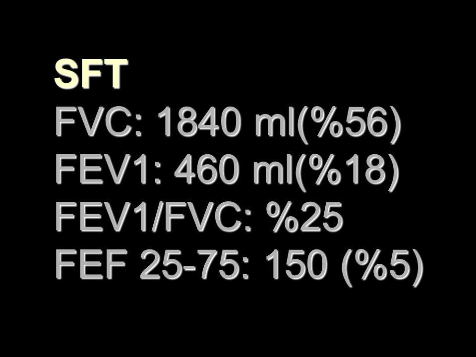 SFT FVC: 1840 ml(%56) FEV1: 460 ml(%18) FEV1/FVC: %25 FEF 25-75: 150 (%5)