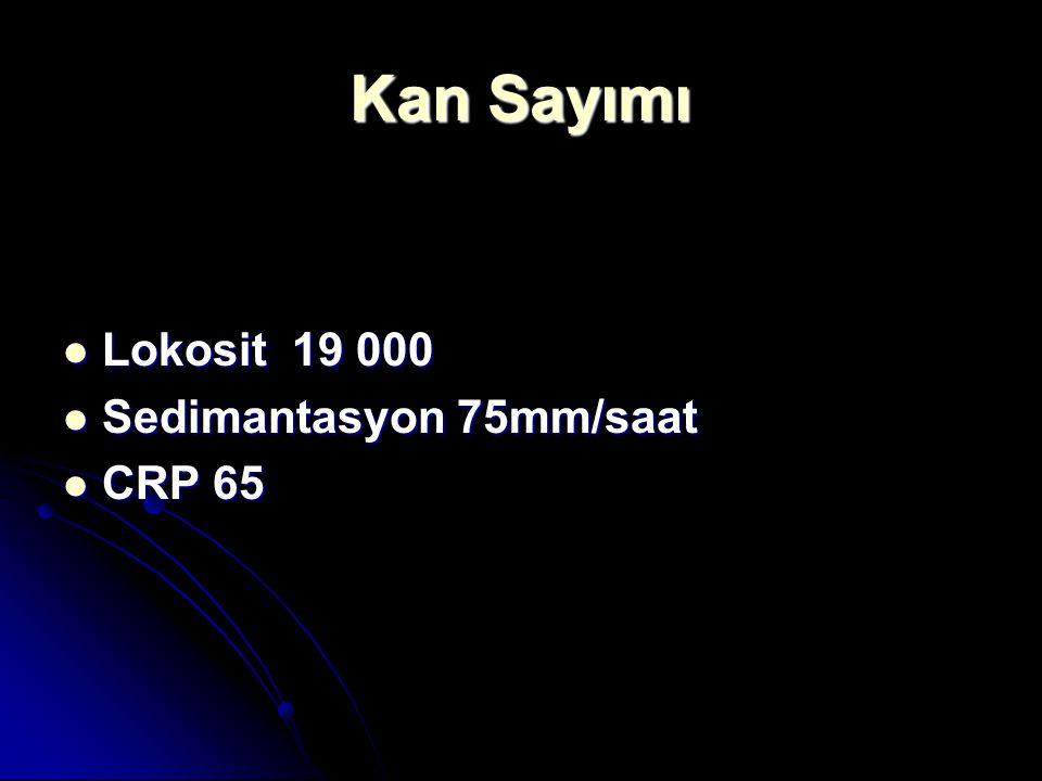 Kan Sayımı Lokosit 19 000 Sedimantasyon 75mm/saat CRP 65