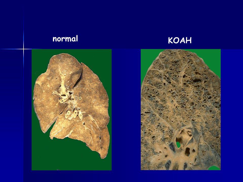 normal KOAH