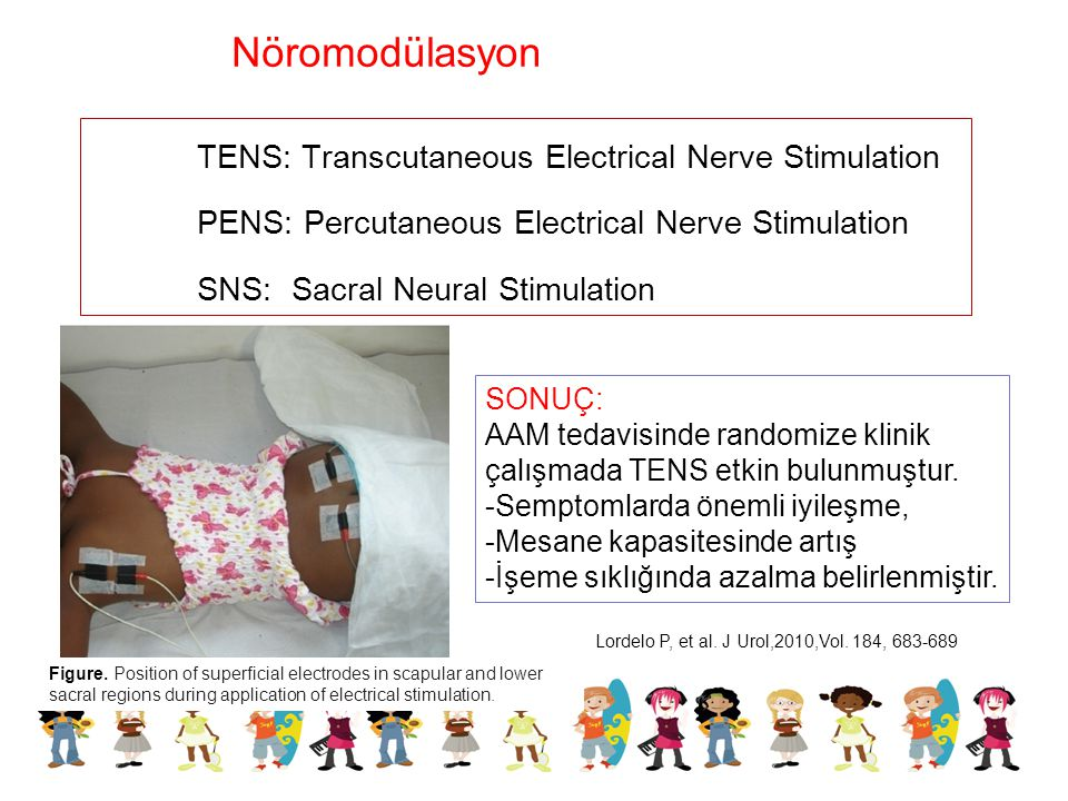 Nöromodülasyon TENS: Transcutaneous Electrical Nerve Stimulation