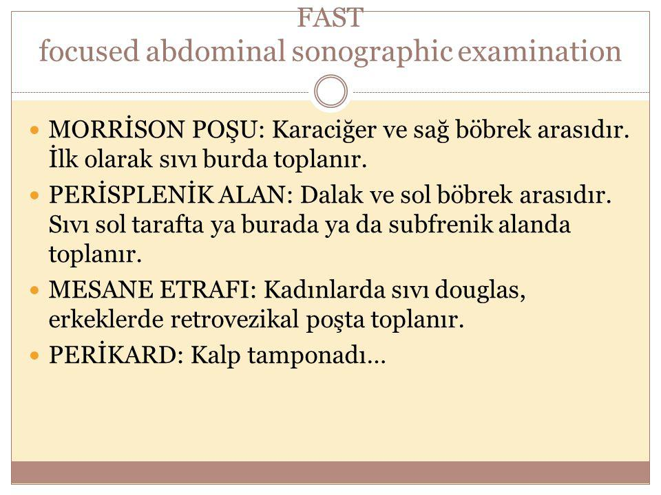 FAST focused abdominal sonographic examination