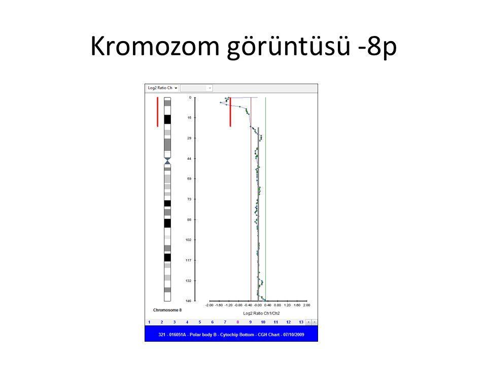 Kromozom görüntüsü -8p