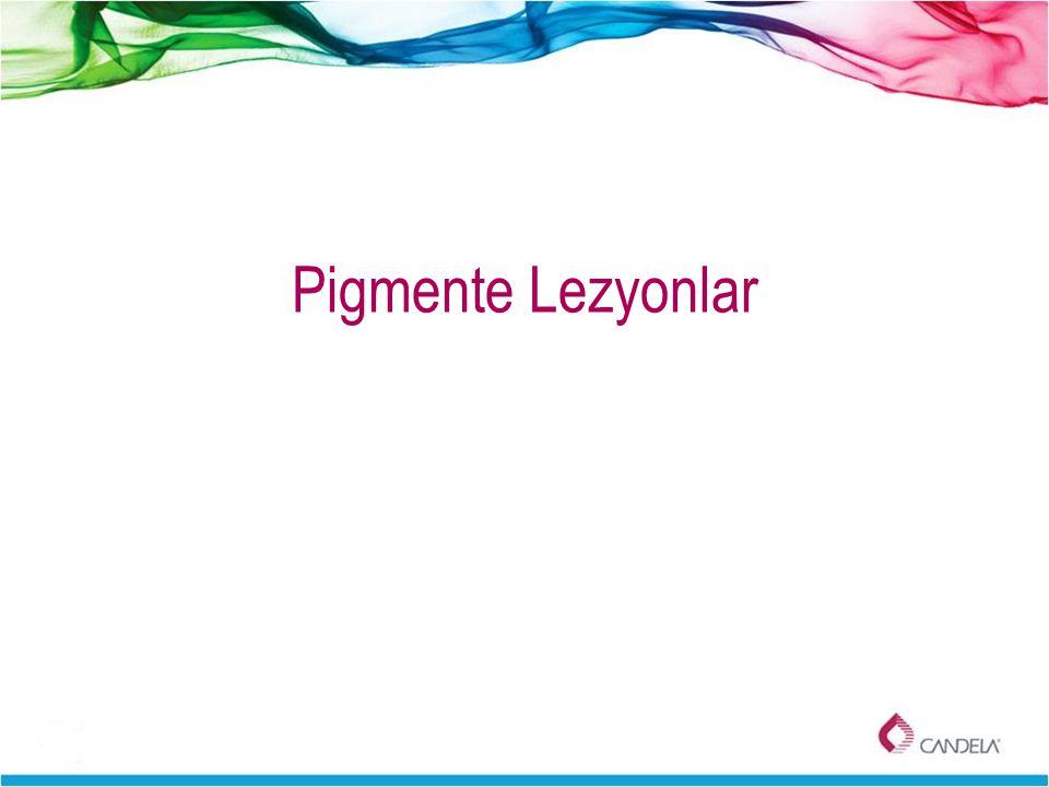 Pigmente Lezyonlar