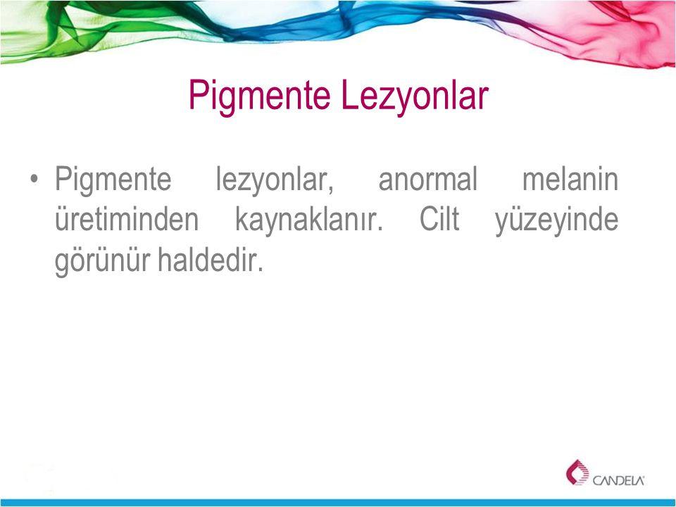 Pigmente Lezyonlar Pigmente lezyonlar, anormal melanin üretiminden kaynaklanır.