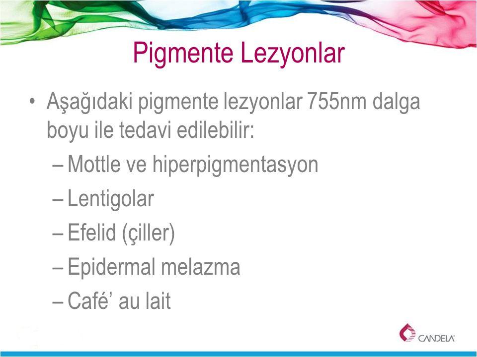 Pigmente Lezyonlar Aşağıdaki pigmente lezyonlar 755nm dalga boyu ile tedavi edilebilir: Mottle ve hiperpigmentasyon.