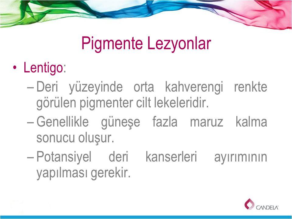 Pigmente Lezyonlar Lentigo: