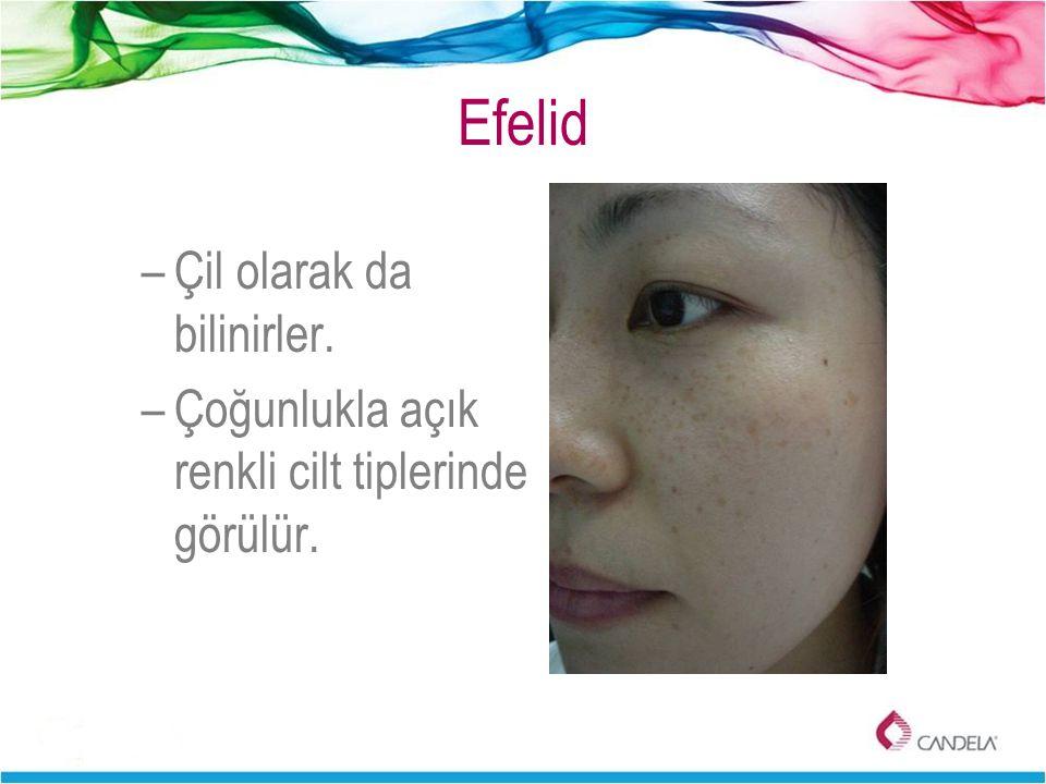 Efelid Çil olarak da bilinirler.