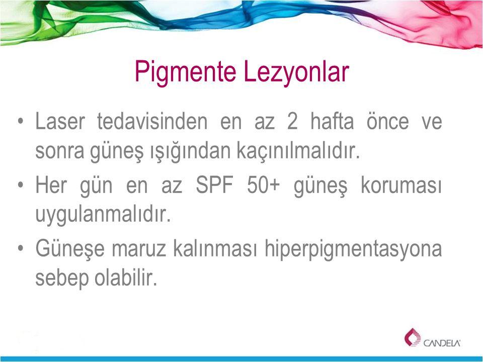 Pigmente Lezyonlar Laser tedavisinden en az 2 hafta önce ve sonra güneş ışığından kaçınılmalıdır.