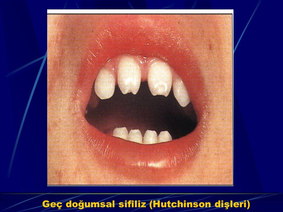 Geç doğumsal sifiliz (Hutchinson dişleri)