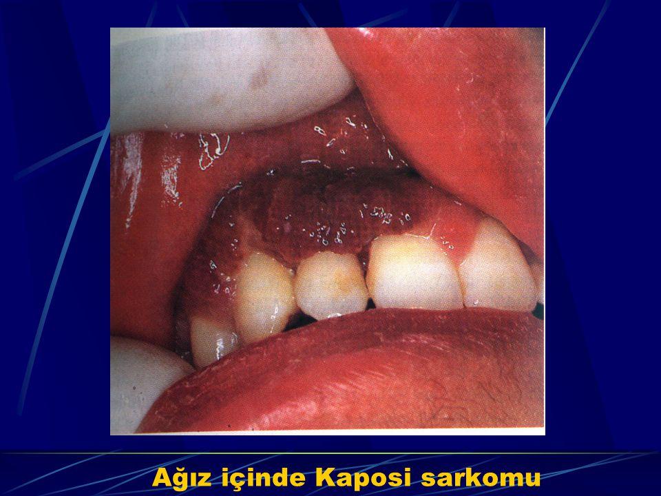 Ağız içinde Kaposi sarkomu