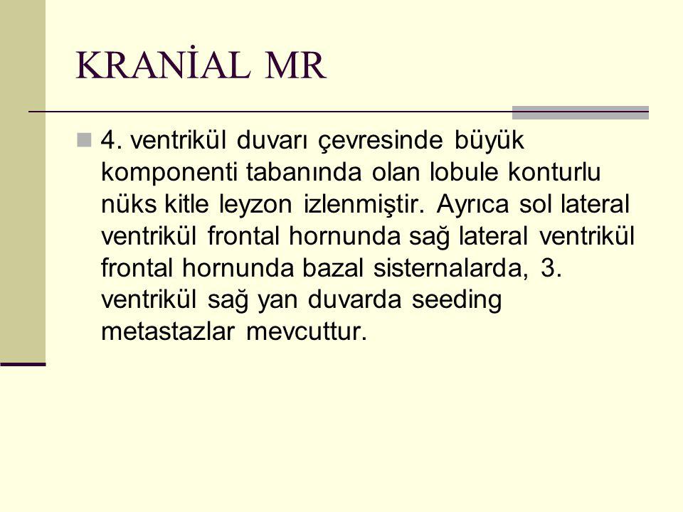 KRANİAL MR
