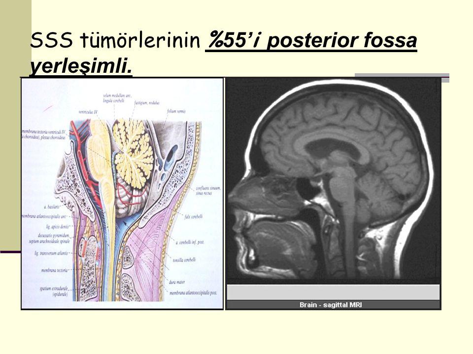 SSS tümörlerinin %55'i posterior fossa yerleşimli.